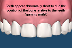 Teeth appear abnormally short due to the position of the bone relative to the teeth: gummy smile.
