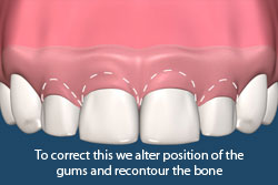 To correct this we alter the position of the gums and recountour the bone.