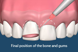 Final position of the bone and gums.
