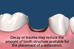 Decay or trauma may reduce the amount of tooth structure available for the palcement of a restoration.
