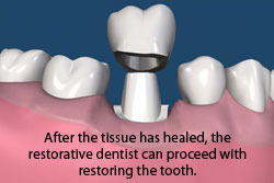 After the tissue has healed, the restorative dentist can proceed with restoring the tooth.