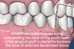 When there is inadequate tissue surrounding the neck of the tooth/teeth, a free gingival graft is placed to increase the zone of attached keratinized tissue.