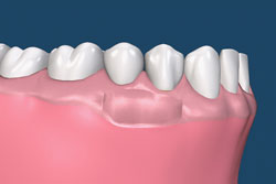 Soft tissue grafting for receding gums.