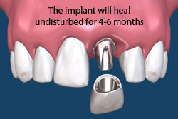 The dental implant will heal undisturbed for 4-6 months.