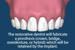 The restorative dentist will fabricate a prosthesis (crown, bridge, overdenture, or hybrid) which will be retained by the dental implant.