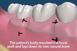 The patient's body resorbed the bone graft and lays down its own natural bone.