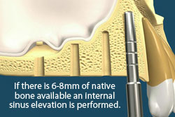 If there is 6-8mm of native bone available an internatl sinus lift is performed.